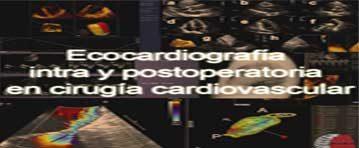 Curso en Ecocardiografía del Paciente Quirúrgico de Cirugía Cardiovascular desarrollado con herramientas Open Source